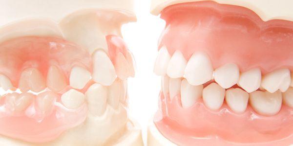 口腔内ケア(粘膜・歯肉のエステ)