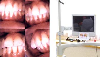 口腔内モニターの使用のイメージ