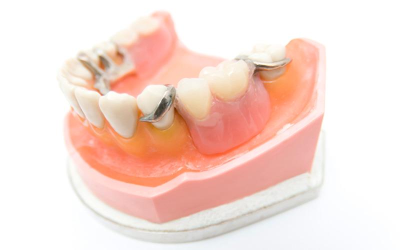入れ歯の重要なポイント